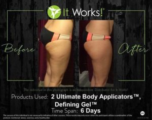 It Works Defining Gel & Wraps on Cellulite Before & After