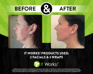 It Works Facial Chin & Neck Wrap Before & After